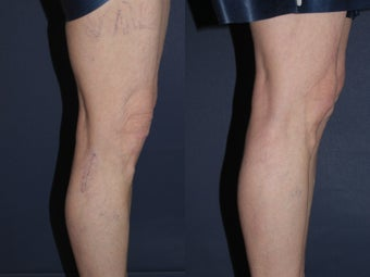 Sclerotherapy Before and After before 1033923