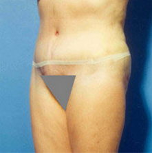 Abdominoplasty 279330