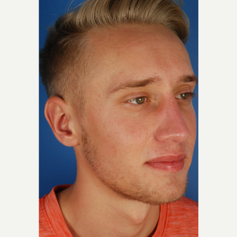 22 year old gentleman treated with Rhinoplasty after 3576753