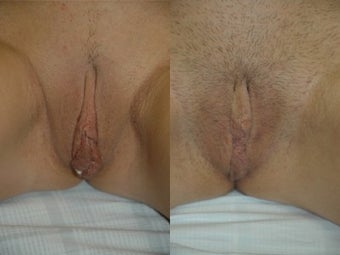 Labiaplasty before 3037820