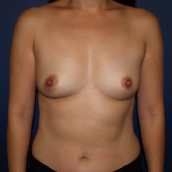 35-44 year old woman treated with Breast Augmentation before 3398466