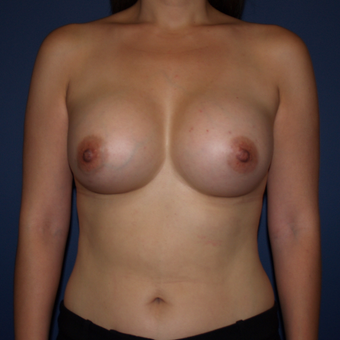 35-44 year old woman treated with Breast Augmentation after 3398466