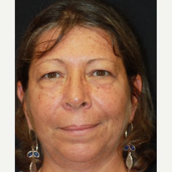 55-64 year old woman treated with Eyelid Surgery before 3383409