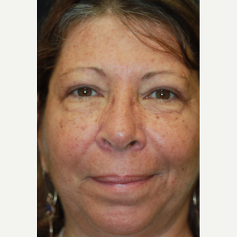55-64 year old woman treated with Eyelid Surgery after 3383409