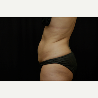 45-54 year old woman treated with Tummy Tuck before 3036680