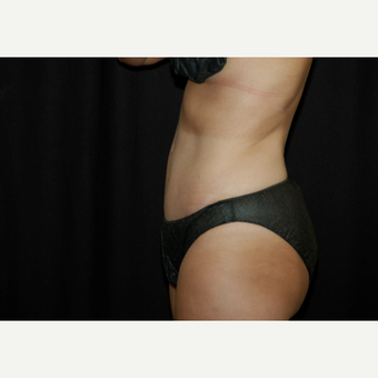 45-54 year old woman treated with Tummy Tuck after 3036680