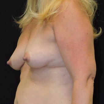45-54 year old woman treated with Breast Augmentation before 3747415