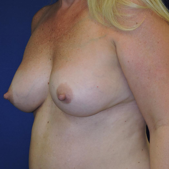 45-54 year old woman treated with Breast Augmentation after 3747415