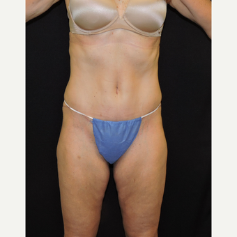 45-54 year old woman treated with Tummy Tuck after 3331406