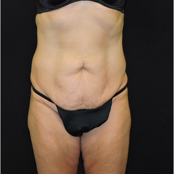 45-54 year old woman treated with Tummy Tuck before 3331406