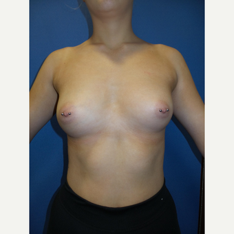18-24 year old woman treated with Breast Augmentation before 3415398