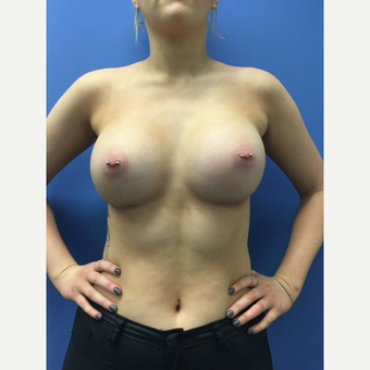18-24 year old woman treated with Breast Augmentation after 3415398