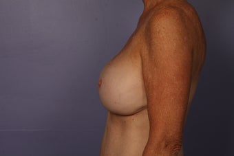 63 yr old Breast Revision after 957284