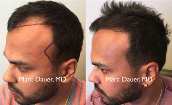 25-34 year old man treated with FUE Hair Transplant after 3377684