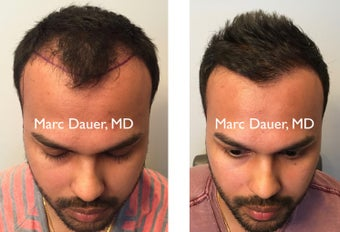 25-34 year old man treated with FUE Hair Transplant before 3377684