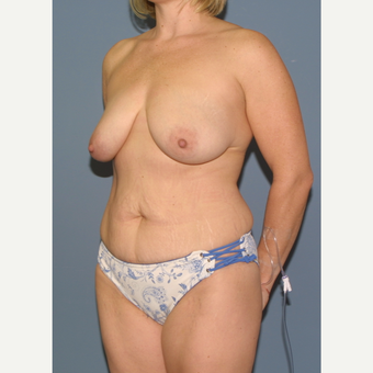 35-44 year old woman treated with Mommy Makeover before 3475429