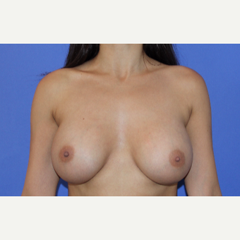 18-24 year old woman treated with Breast Augmentation after 3201077