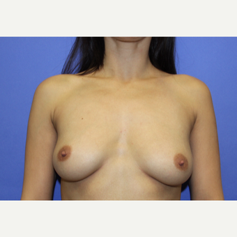 18-24 year old woman treated with Breast Augmentation before 3201077