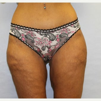 47 year old woman treated with Thigh Lift after 1707761