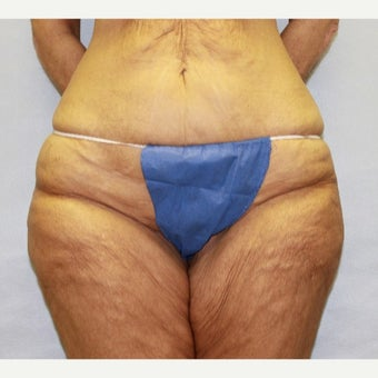 47 year old woman treated with Thigh Lift before 1707761