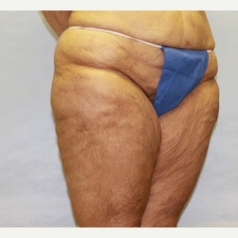 47 year old woman treated with Thigh Lift 1707761