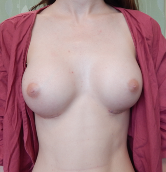18-24 year old woman treated with Breast Augmentation after 1675904