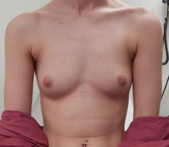 18-24 year old woman treated with Breast Augmentation before 1675904