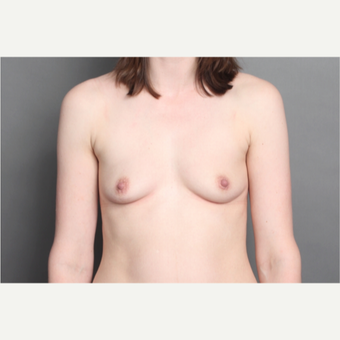 25-34 year old woman treated with Breast Implants before 2979727