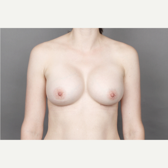 25-34 year old woman treated with Breast Implants after 2979727