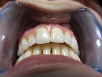 How to reduce an extreme overjet/overbite with Invisalign and without extractions