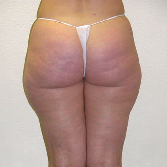 45 year old woman treated with Laser Liposuction before 3684870