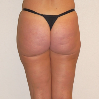 45 year old woman treated with Laser Liposuction after 3684870