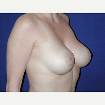 35-44 year old woman treated with Breast Implants after 3727096