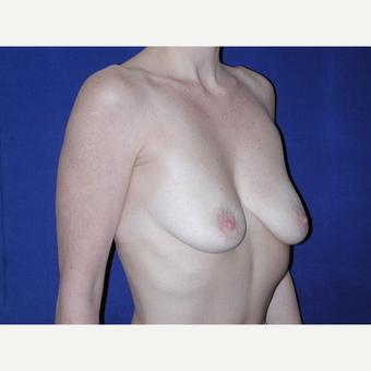 35-44 year old woman treated with Breast Implants before 3727096