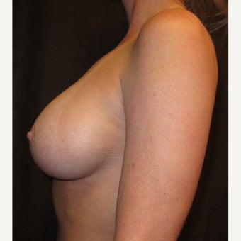45-54 year old woman treated with Breast Implants 1635956