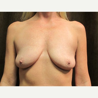 45-54 year old woman treated with Breast Implants before 1635956