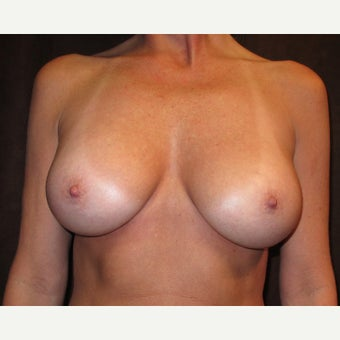 45-54 year old woman treated with Breast Implants after 1635956