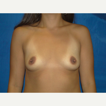 Breast Augmentation with 450 cc Silicone before 3447819