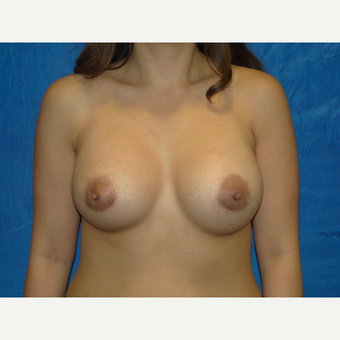 Breast Augmentation with 450 cc Silicone after 3447819