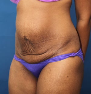 Abdominoplasty (Tummy Tuck) for 34 Year Old Female  1129795