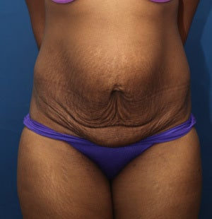 Abdominoplasty (Tummy Tuck) for 34 Year Old Female  before 1129795