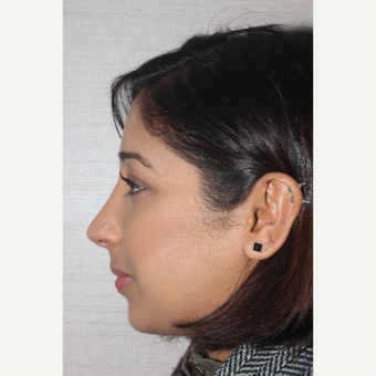 18-24 year old woman treated with Rhinoplasty after 3130041
