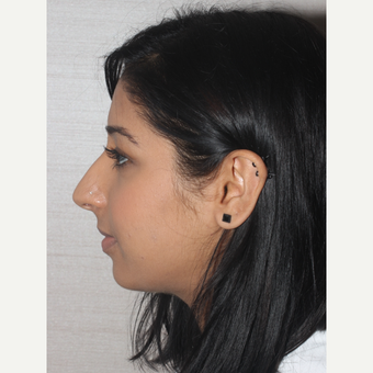 18-24 year old woman treated with Rhinoplasty before 3130041