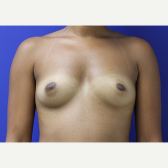 25-34 year old woman treated with Breast Augmentation before 2796438