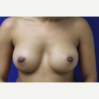 25-34 year old woman treated with Breast Augmentation after 2796438
