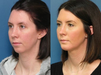 Chin Liposuction​ & Chin Implant 338473