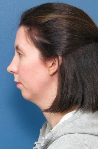Chin Liposuction​ & Chin Implant before 338473