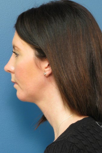 Chin Liposuction​ & Chin Implant after 338473