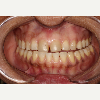 45-54 year old man treated with Porcelain Veneers before 2697031