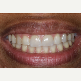 45-54 year old man treated with Porcelain Veneers after 2697031